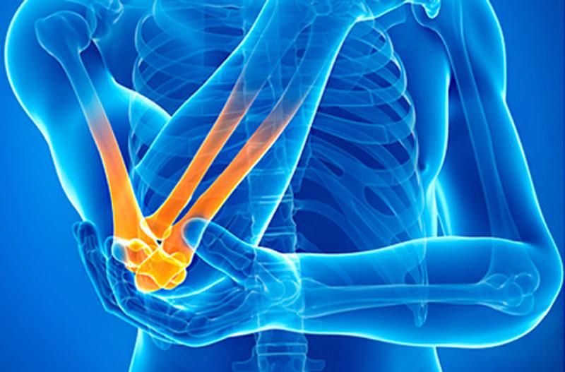 Артроз коленей лечение народное